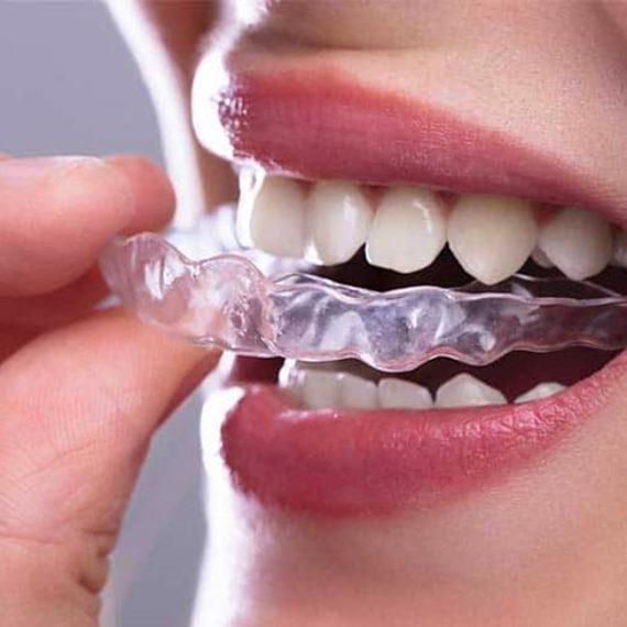 Studio Dentistico Dr Franco Milaneschi | News-Bite