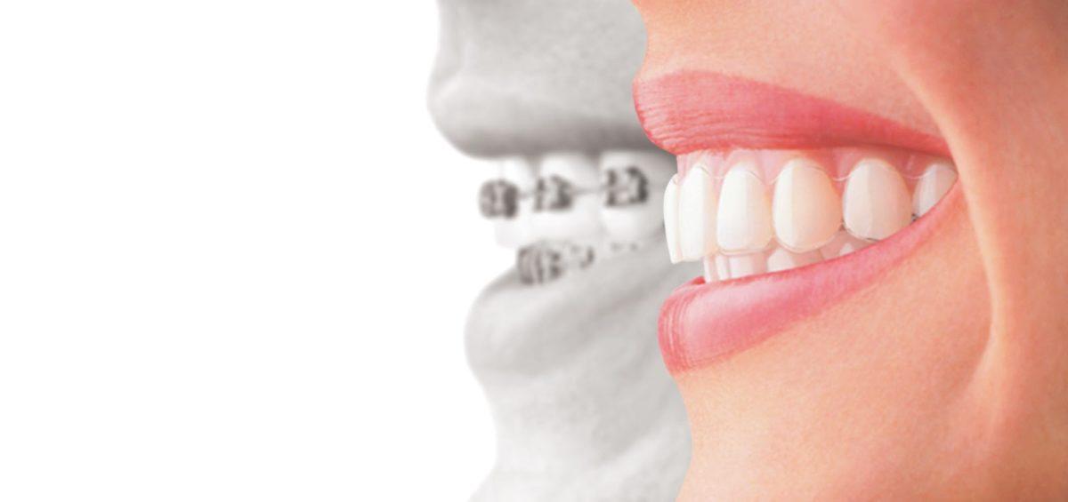 Studio Dentistico Dr Franco Milaneschi | Apparecchio invisibile