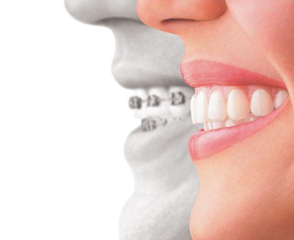 Studio Dentistico Dr Franco Milaneschi | Apparecchio_invisibile